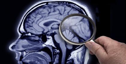 علماء يجدون النحاس والحديد في أدمغة مرضى الزهايمر المتوفين